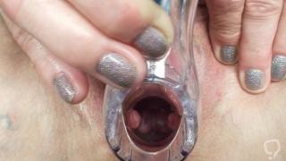 Close exam for mature nurse\'s wet pussy